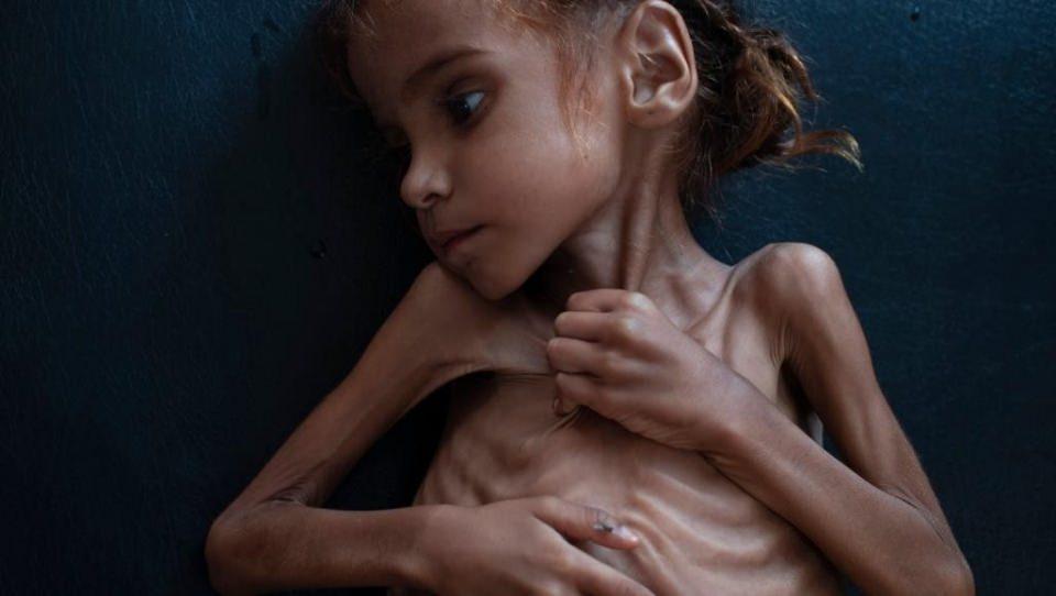 <p>Yemen'de iç savaşın sembolü olan ve geçtiğimiz hafta fotoğrafları yayınlanmasının ardından dünyanın gündemine oturan 7 yaşındaki Emel Hüseyin kaldığı kampta hayatını kaybetmişti. Ne yazık ki Yemen'de her 10 dakikada bir çocuk ölürken dünya bu konuda hala sessiz...</p>