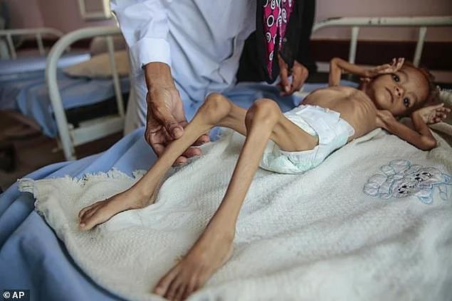 <p>Amal'in annesi, paraları olmadığı için 15 km uzaklıktaki Doctors Without Borders Hastanesi'ne çocuklarını götüremediklerini söyledi.</p>  <p></p>  <p></p>