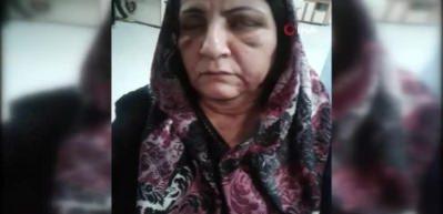 Annesini döven hayırsız evlat tutuklandı