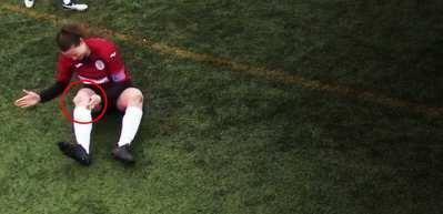 Kadın futbolcu çıkan diz kapağını yerine oturtup maça devam etti!