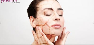 Kuru cilde bakım nasıl yapılmalı? Kış aylarında kuru ciltlere öneriler...