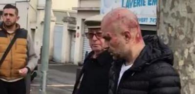 Teröristler Fransa'da Türklere saldırdı