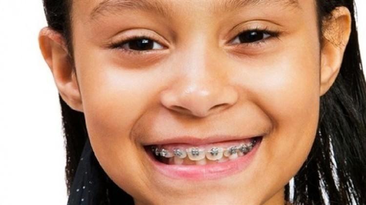 Ağızdan nefes alanların diş yapıları bozuluyor
