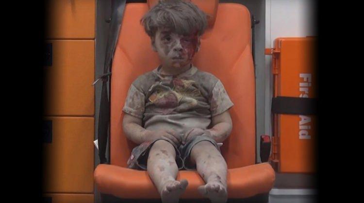İnsanlığın yeni utancı 'Suriyeli Ümran' haberleri! - Halepli Ümran spikeri ağlattı! - BM Umran'dan sonra...