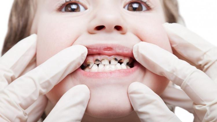 Çocuğunuzun diş bakımını sömestrda yaptırın!