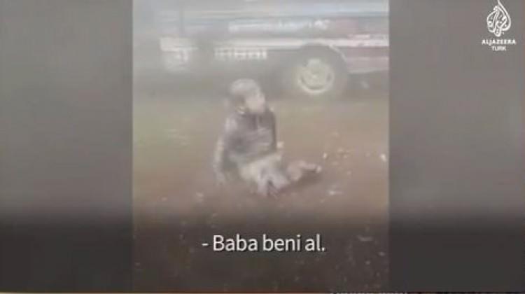 Esed rejiminin saldırılarında bacaklarını kaybetti
