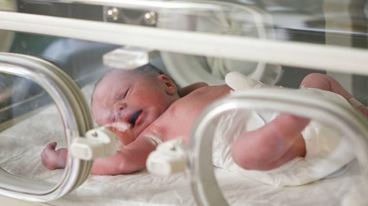 Hava kirliliği en çok bebekleri etkiliyor