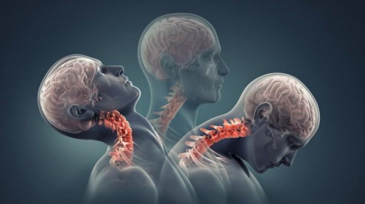 Boyun fıtığı ağrılarında yapılacak egzersizler