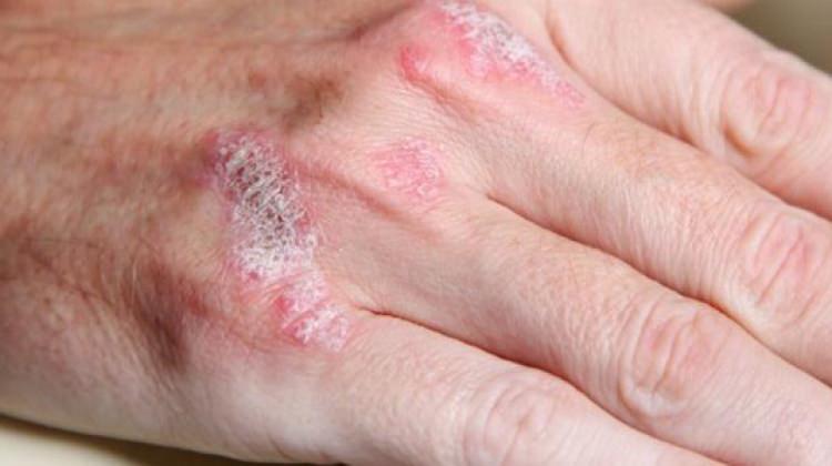 Vücuttaki hangi leke hangi hastalığın habercisi?