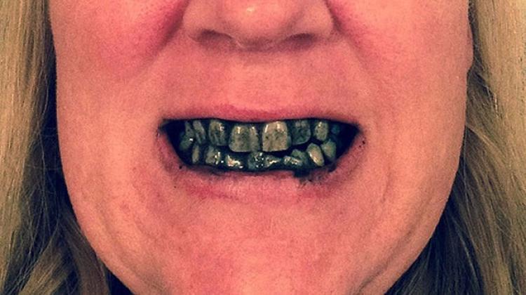 Dişleri Bembeyaz Yapıyor Ama Sağlik Haberleri