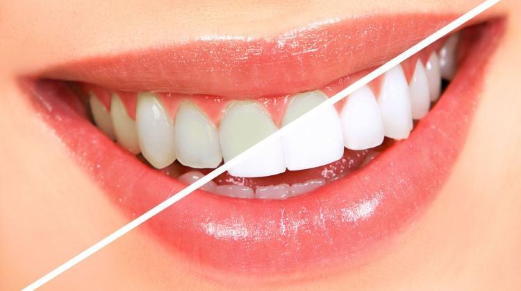 Diş beyazlatmada ki büyük tehlike!