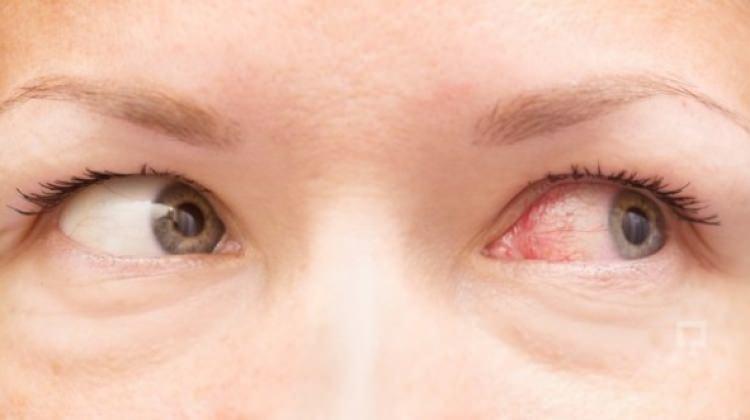 Göz kanlanması nasıl geçer?