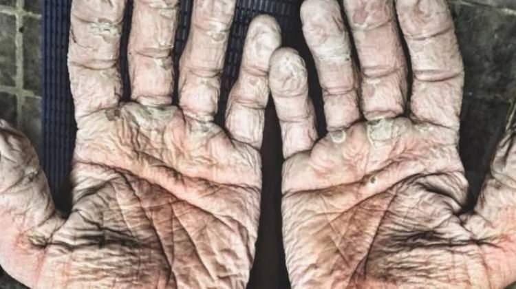 Dünya rekoru kırdı ama elleri...