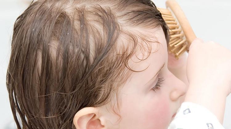 Çocuklarda kepek saç tedavisi