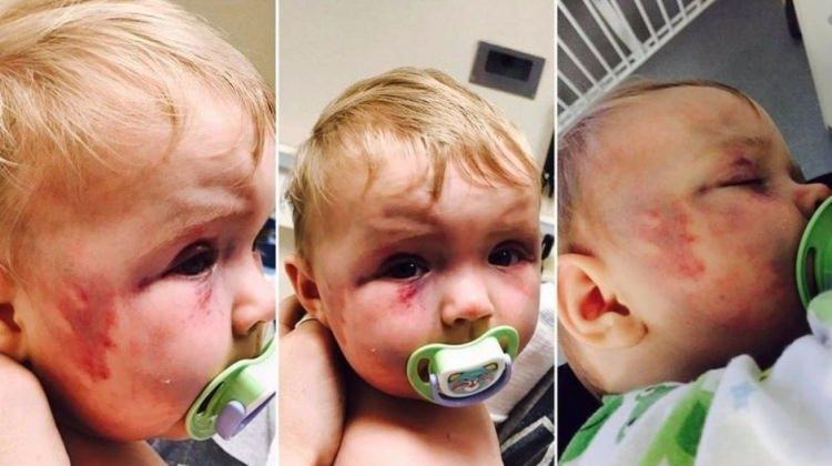 Sekiz aylık kızını döven anne ceza almadı!