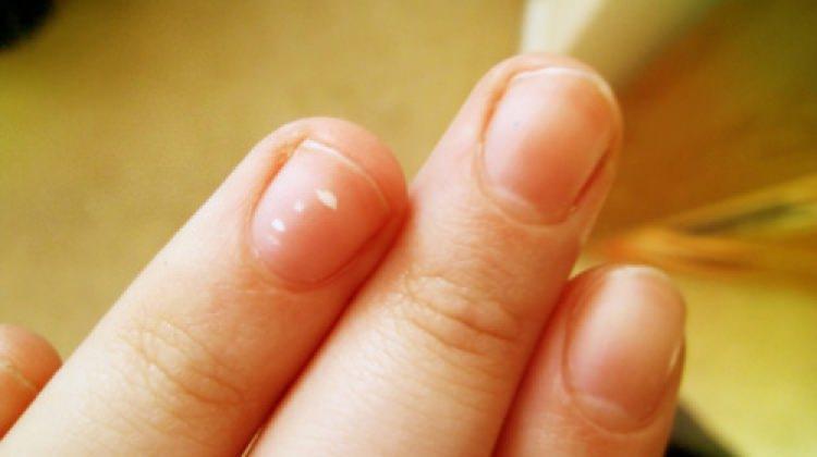 Tırnak beyazlaması nasıl önlenir