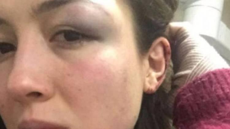 Genç kadından şok iddia! Demir çubukla dövdü