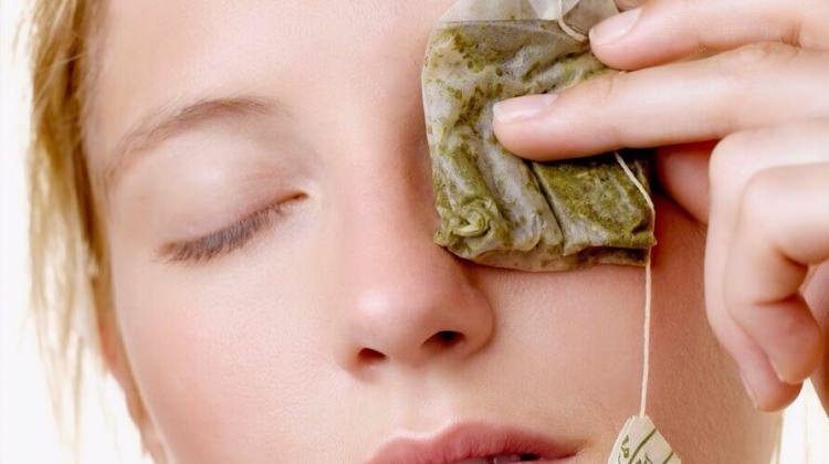 Göz ağrılarına ne iyi gelir?