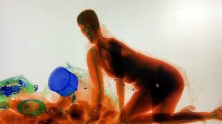 Milyonluk tablo değil! Çinli kadın X-Ray'de