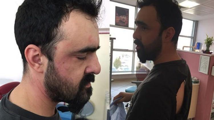 Randevusuna geç kalan hasta doktorunu dövdü!