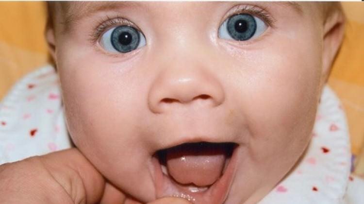 Bebeklerde damak düşmesi nedir, neden olur? Belirtileri ve tedavisi...