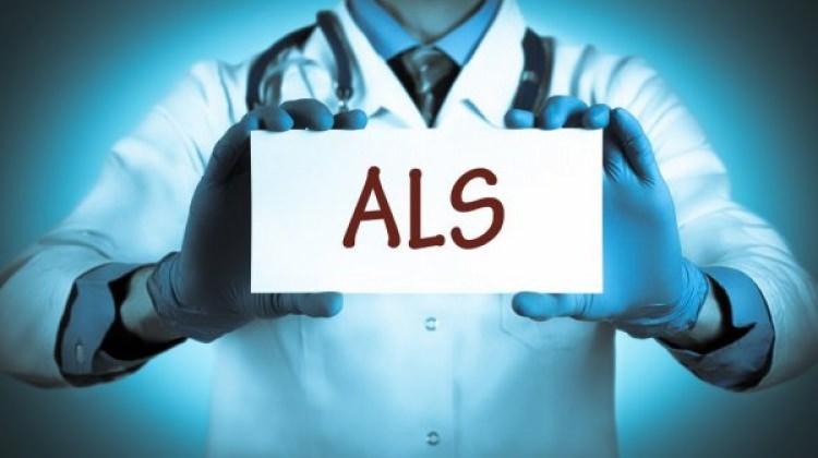 ALS hastalığı nedir? ALS belirtileri nelerdir, tedavisi mümkün müdür?