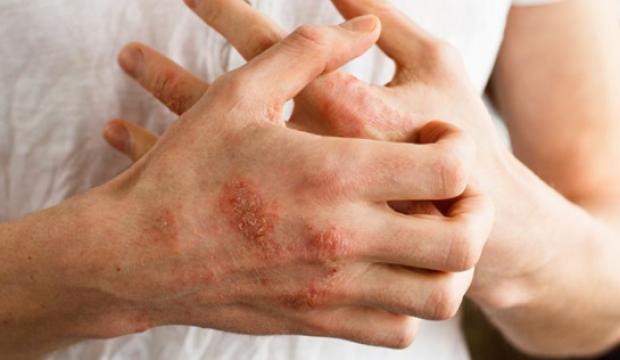 Eller üzerindeki parmaklar çatlıyor: nedenleri ve tedavisi
