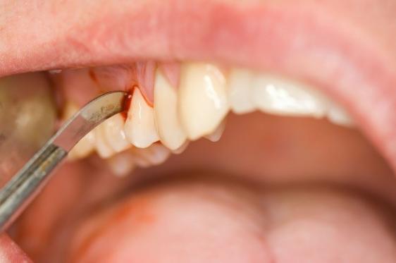 Diş eti kanamasının sebebi nedir? Nasıl geçer tedavi yöntemleri...