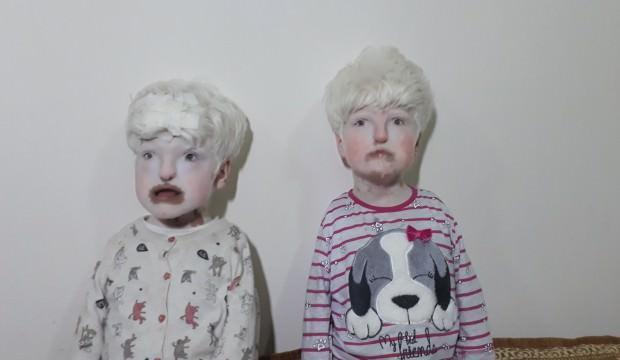 Albino kardeşler görenlerin yüreklerini burkuyor