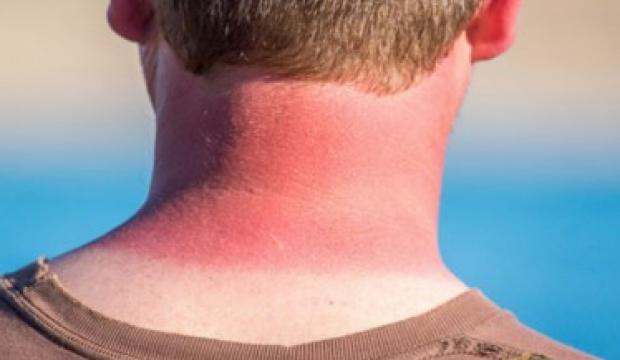 Güneş yanığına ne iyi gelir? Güneş yanığına doğal yollarla tedavi yöntemleri...