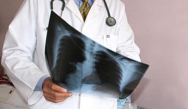 Uzmanlar açıkladı! Akciğer kanseri ölümlerinde artış