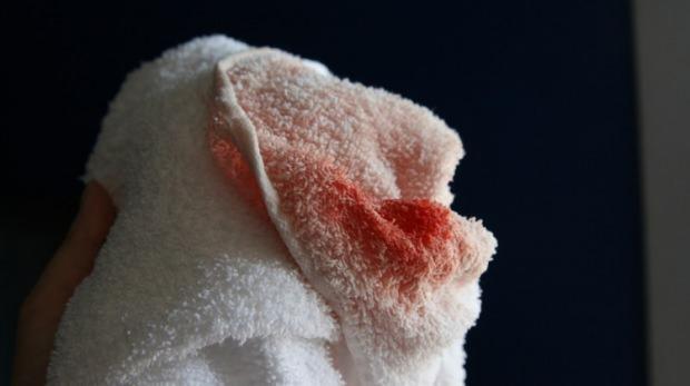 Kan lekesi nasıl çıkarılır?