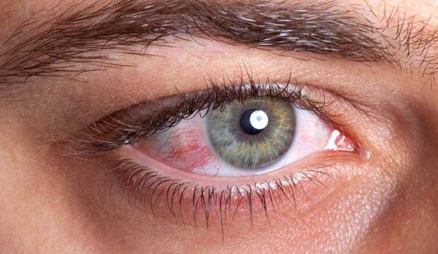 göz-kanlanması-tedavisi