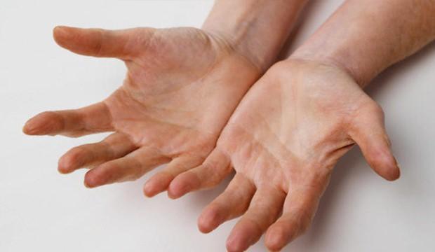 parmak-uyuşması-nedenleri