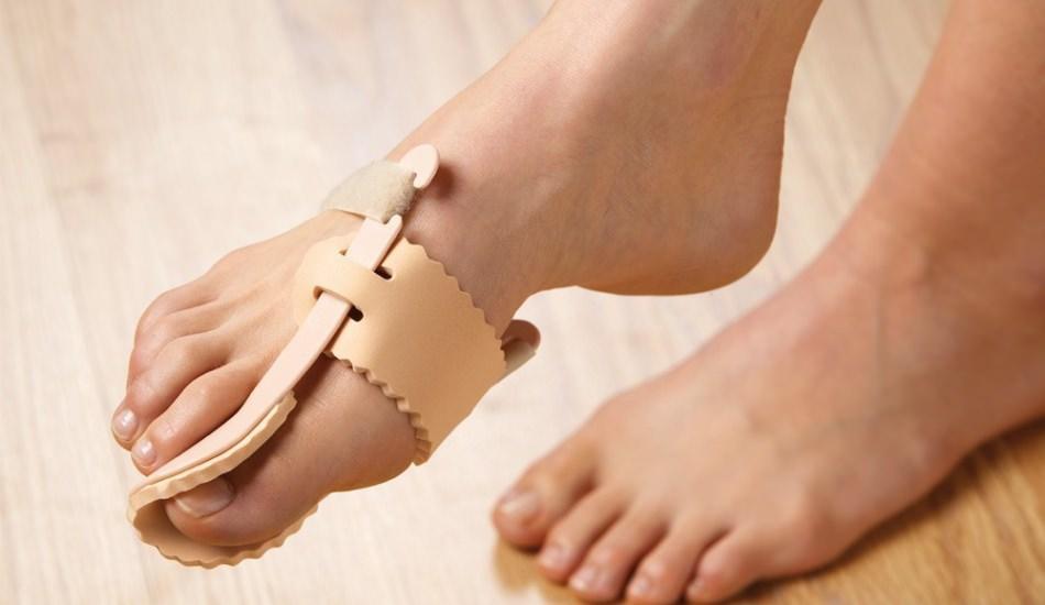 Ayak baş parmağındaki kemik çıkıntısı neden olur?
