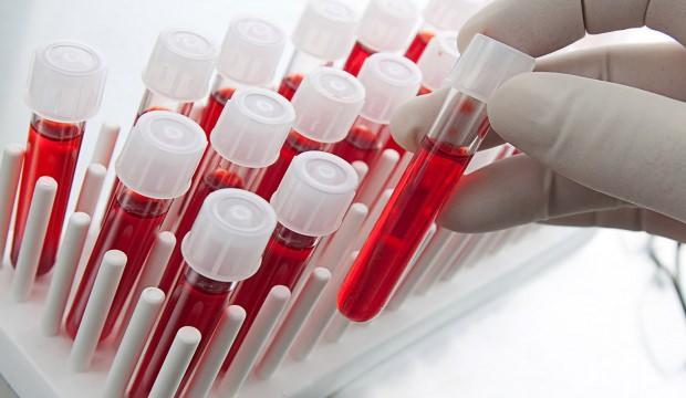 WBC kan tahlili testi nedir? WBC lökosit yüksekliği - düşüklüğü neden olur?