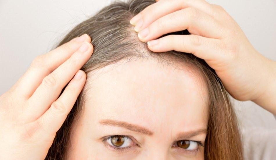 Saç beyazlamasına evde doğal çözüm!