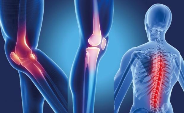 Eklem ağrısı nasıl geçer korunma yöntemleri: Acılı Eklem ağrısı için ne yapılmalı - SAĞLIK Haberleri