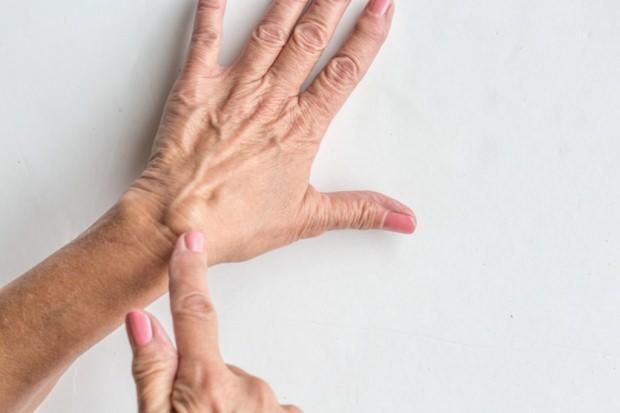 elde kistinin ganglion belirtileri var midir el kistinin tedavi yontemi nedir saglik haberleri