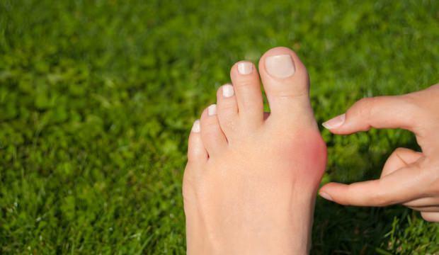 Ayak üstünde kemik çıkıntısı neden olur? Ayakta kemik çıkıntısı tedavisi