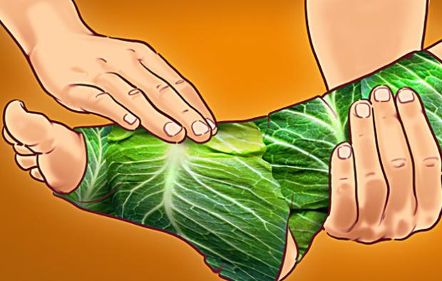 lahana tedavisi