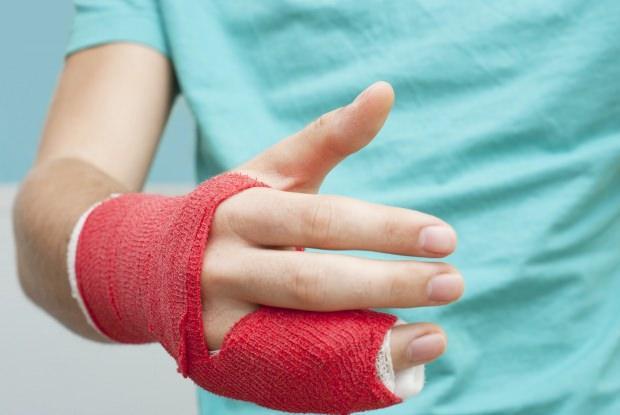 parmak kırılması