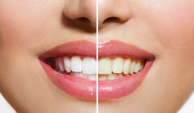 Doğal Etkili Ve Kalıcı Diş Beyazlatma Yöntemleri Bembeyaz Dişler