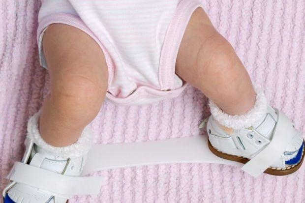 bebeklerde kalça çıkıklığı