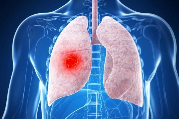 akciğerde leke belirtileri