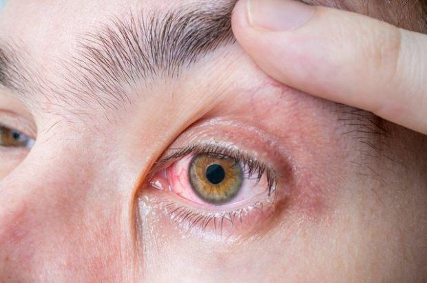 göz alerjisi nedir