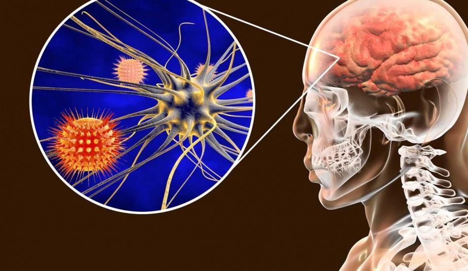 Menenjit nedir ve belirtileri neledir? Menenjit tedavisi var  mıdır?
