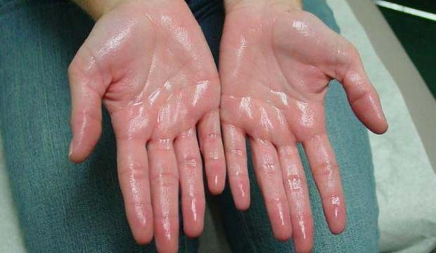 Avuç içi terlemesi nasıl geçer? Bitkisel yöntemlerle el terlemesi tedavisi...