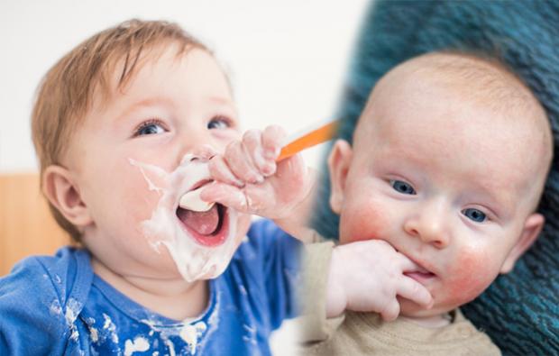 bebeklerde besin alerjisi belirtileri