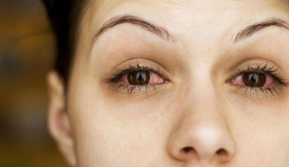 Konjonktivit (Göz gribi)  nedir ve belirtileri nelerdir? Konjonktivit nasıl bulaşır?